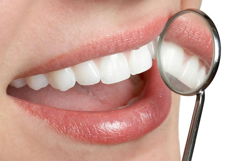 Downey Beautiful Smile Dental Offer