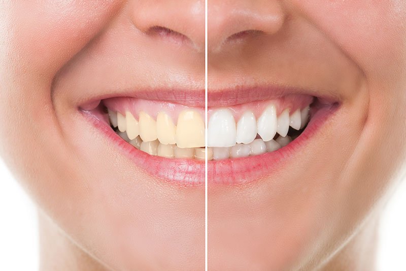 Teeth Whitening - Downey Beautiful Smile, Downey Dentist
